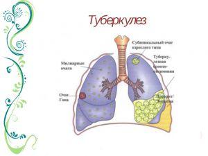 tuberkul